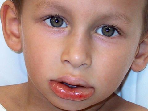 Peanut Allergy Lips